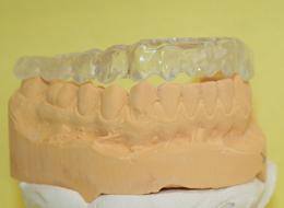 Funktionsstörungen Zahnarzt Großzschocher